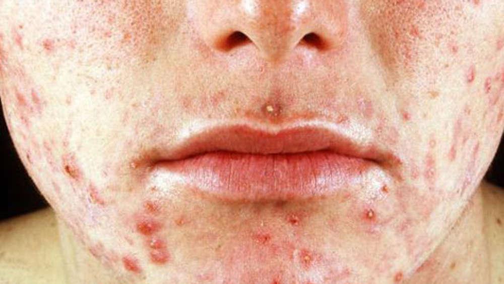 Behandlung von Erwachsenen Akne und Falten