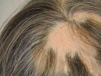 Die Preise für die Ampullen gegen den Haarausfall