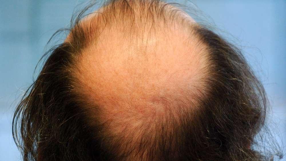 Bakterien auf der Kopfhaut verstärken Schuppen - Forscher