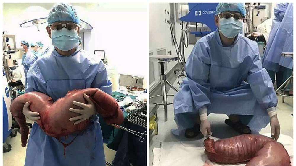 22-Jähriger hatte 13 Kilo Fäkalien in seinem Darm