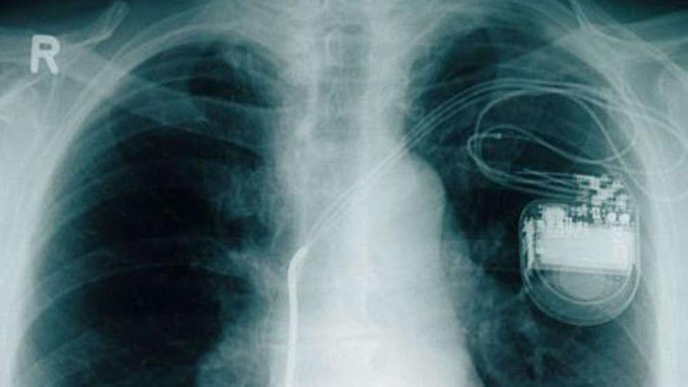 Gut bekannt Nähe zu Induktionsfeld für Herzschrittmacher ungefährlich | Gesundheit GV74