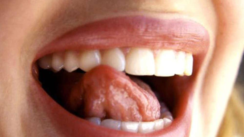 Aphten Konnen Auf Vitamin Mangel Hinweisen Gesundheit