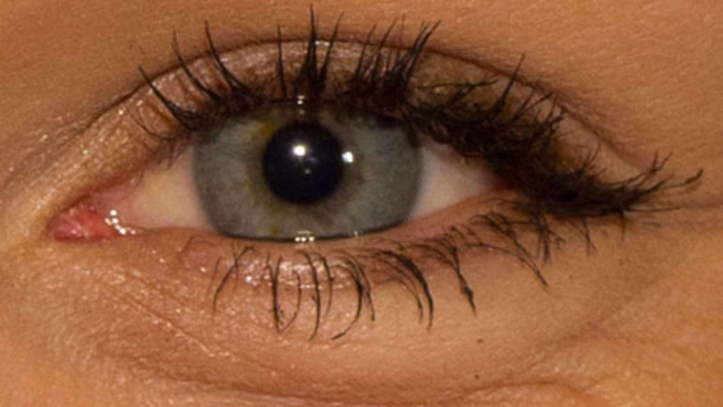 Augen: Ernährung kann Sehvermögen verbessern, sogar Makula