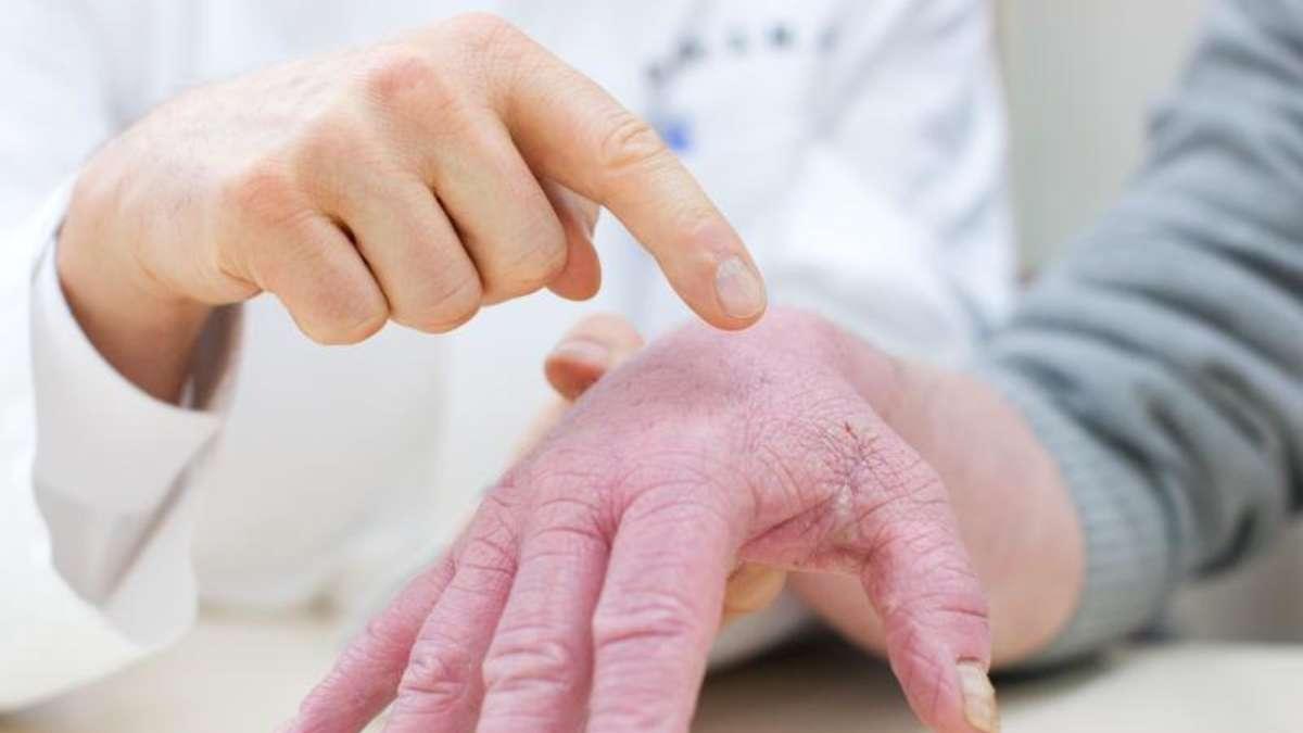 Aufgeplatzte Fingerkuppen
