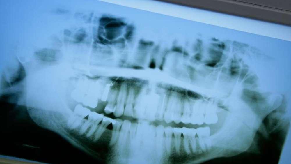Röntgen Im Mundraum Nicht Mehr Als Unbedingt Nötig Gesundheit