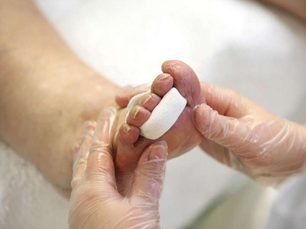 parazita tabletták emberben