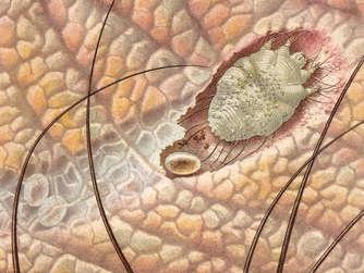 Von den Parasiten die Rezension gereinigt zu werden