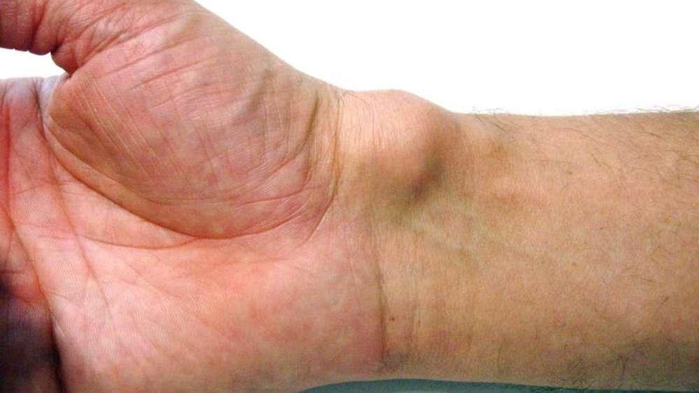 Muss ein Überbein (Ganglion) operiert werden?   Gesundheit
