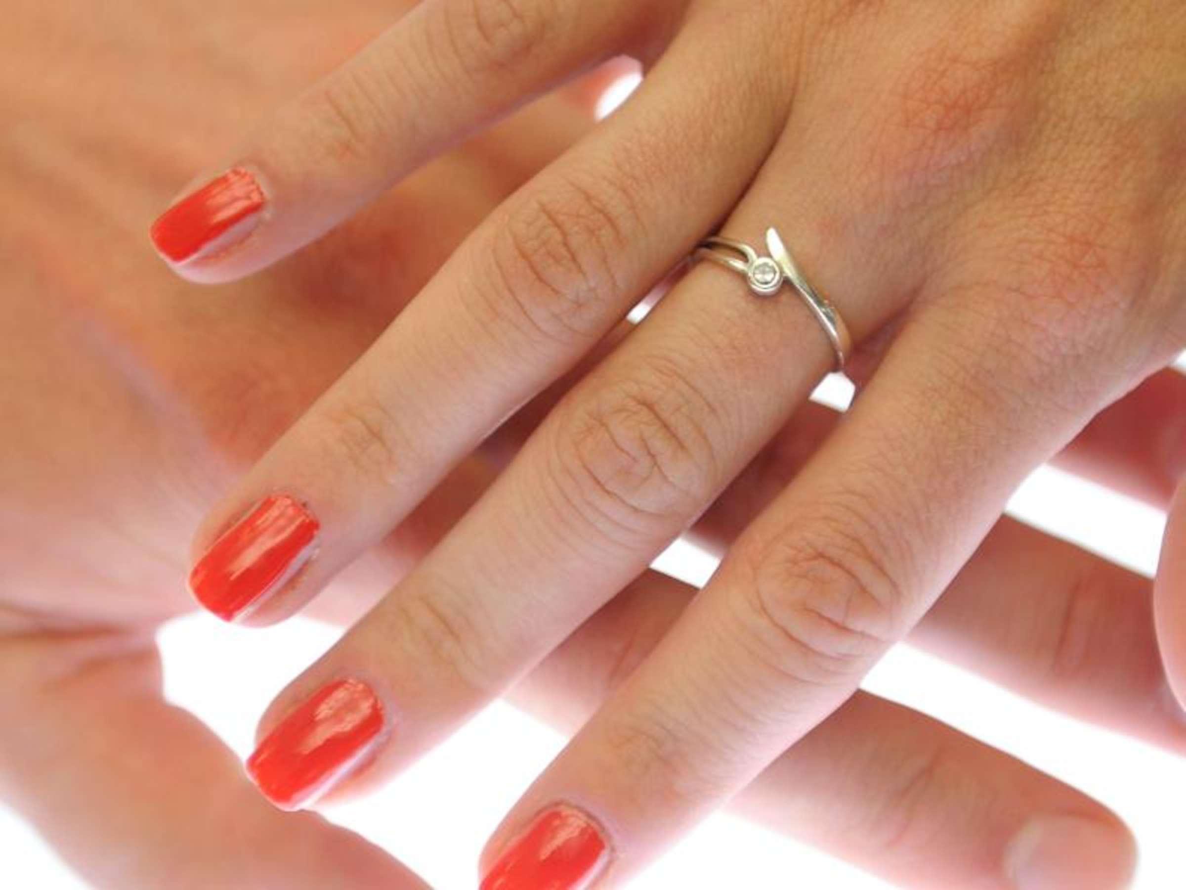 Am finger knubbel Ganglion: So