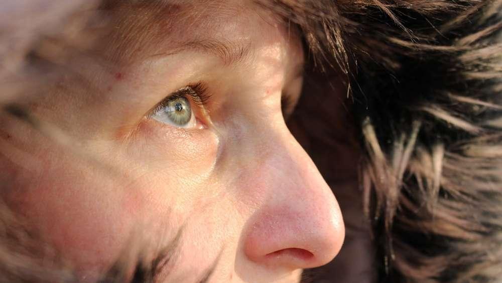 Trockene Haut Bei Diesen Anzeichen Sollten Sie Einen Arzt Aufsuchen
