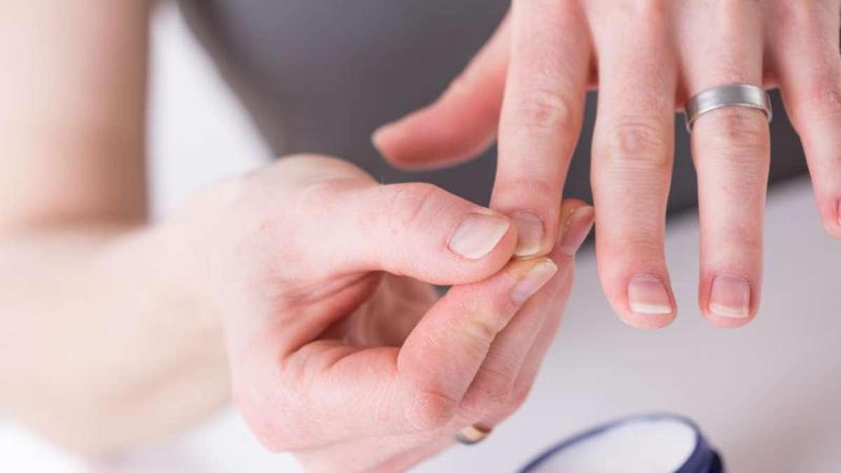 Schuppenflechte kann auch die Nägel befallen | Gesundheit