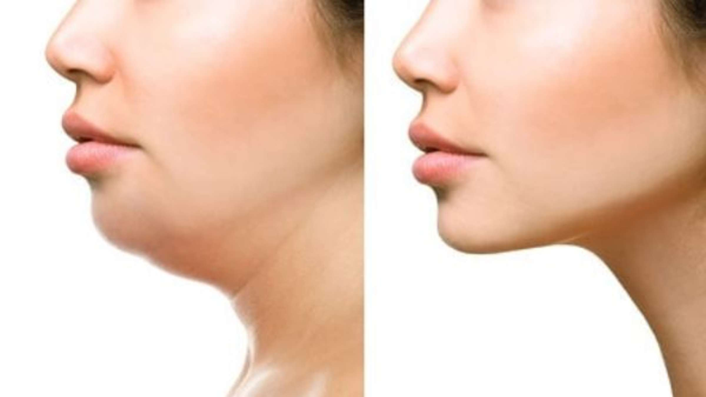 Übungen, um Gesicht und Doppelkinn zu verlieren