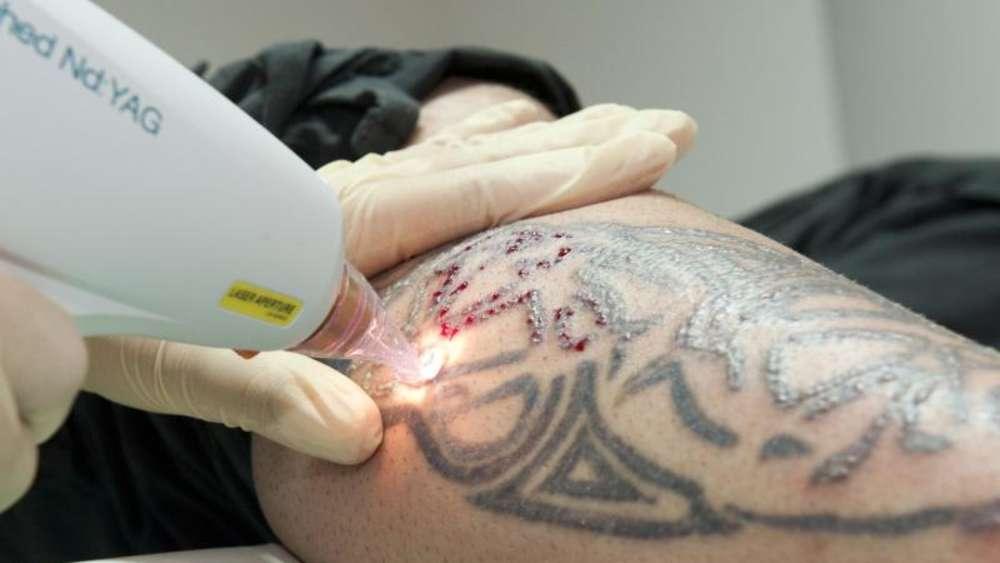 Tattoo Lasern Am Besten Beim Hautarzt Gesundheit