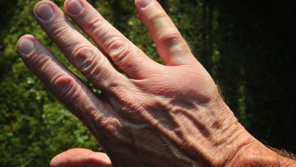 Wespen-greifen-wieder-an-Mit-diesem-genialen-Trick-halten-Sie-die-Insekten-auf-Abstand