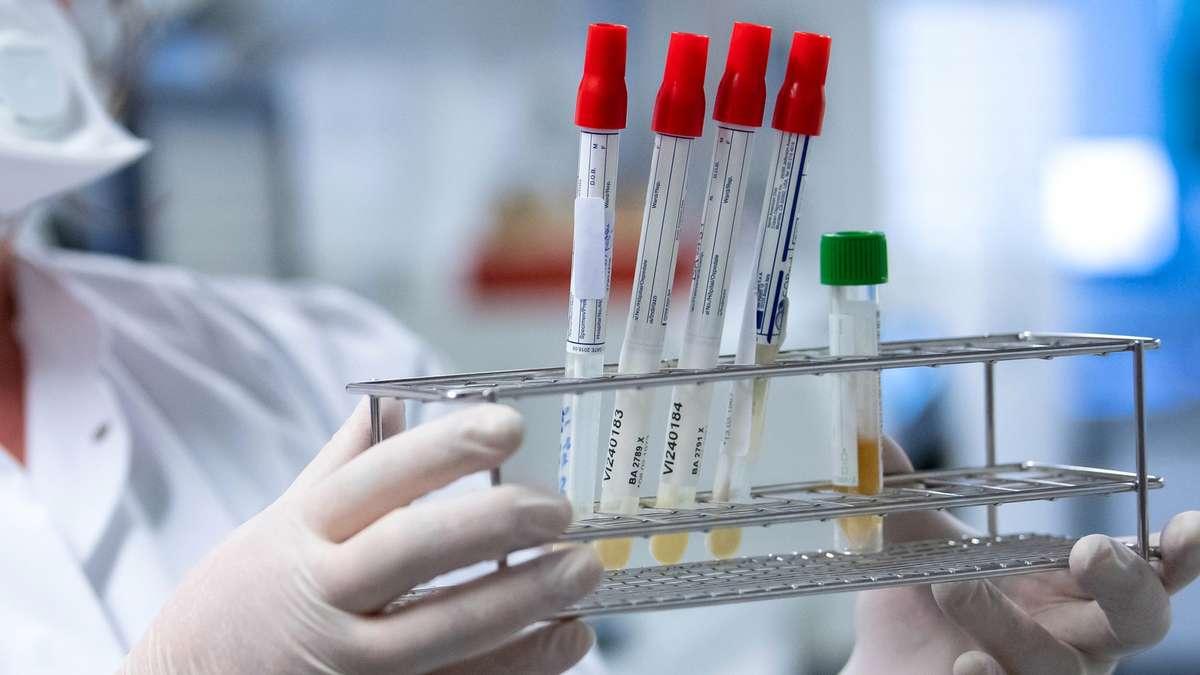 """Corona: Zweitinfektion mit Virus - Bayer berichtet von """"starken Schmerzen"""" und Todesangst - Merkur.de"""